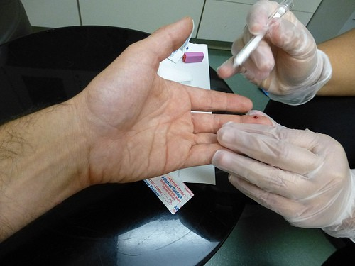 Day in the Life of an HIV Tester: HIV Testing 101